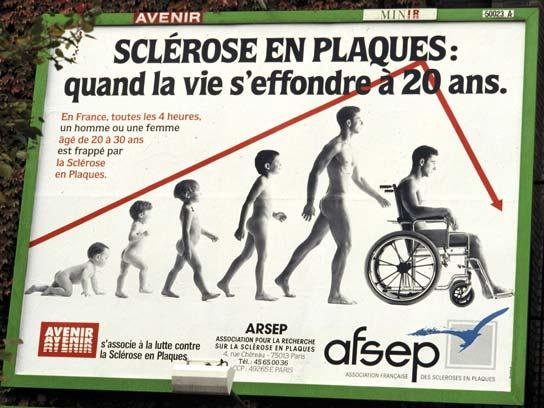 scleroseenplaques0.jpg